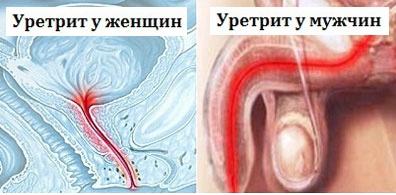 Имплантация зубов: виды и цены в Москве - Сеть