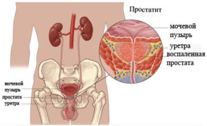 chronic_prostatitis