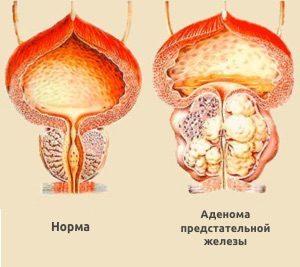 Как делают операцию рак предстательной железы