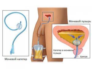 lechit-adenomu-prostaty4