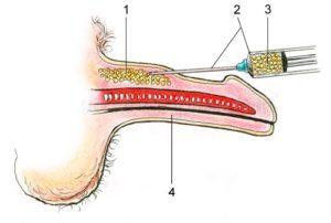 hirurgiya-i-uvelichenie-penisa