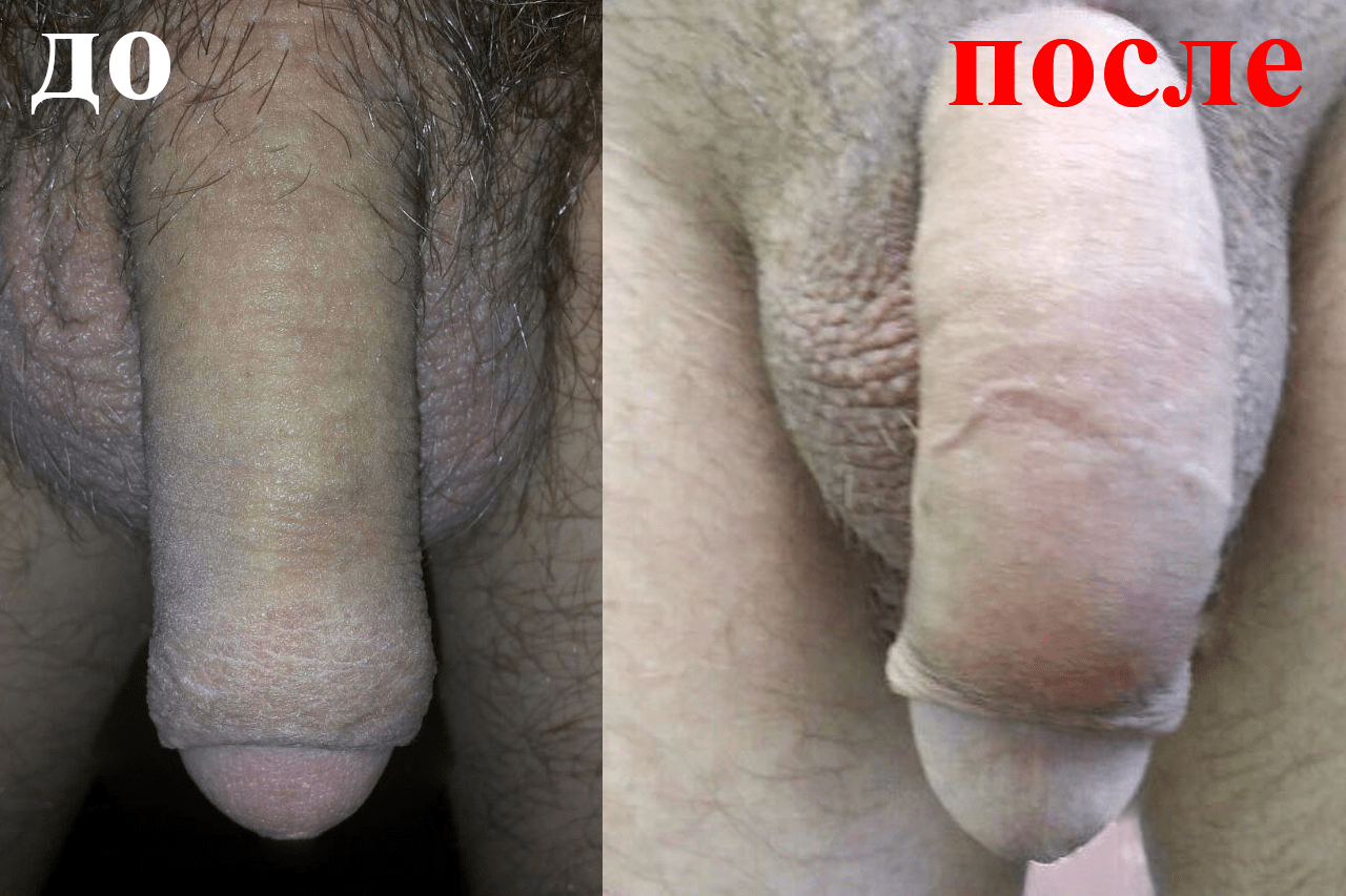 Толщина члена какая считается нормальной толщина пениса 3 4 5 см